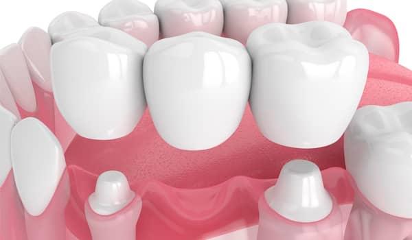 Treatment - Purlys Dental Practice