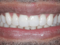 After - Purlys Dental Practice