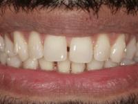 Before - Purlys Dental Practice